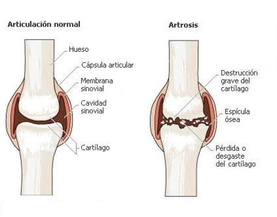 Resultado de imagen para artrosis